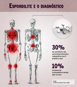infografico-espondilite