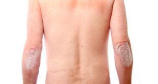 artrite-psoriasica-spr