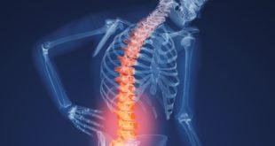 osteoporose spr3
