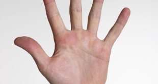 esclerodermia spr