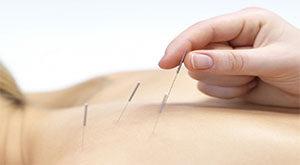 acupuntura 1