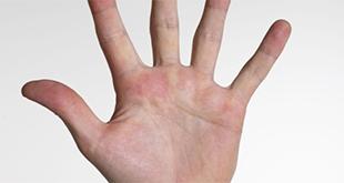 esclerodermia p